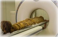 Ancient people had clogged arteries, too, mummy CT scans show